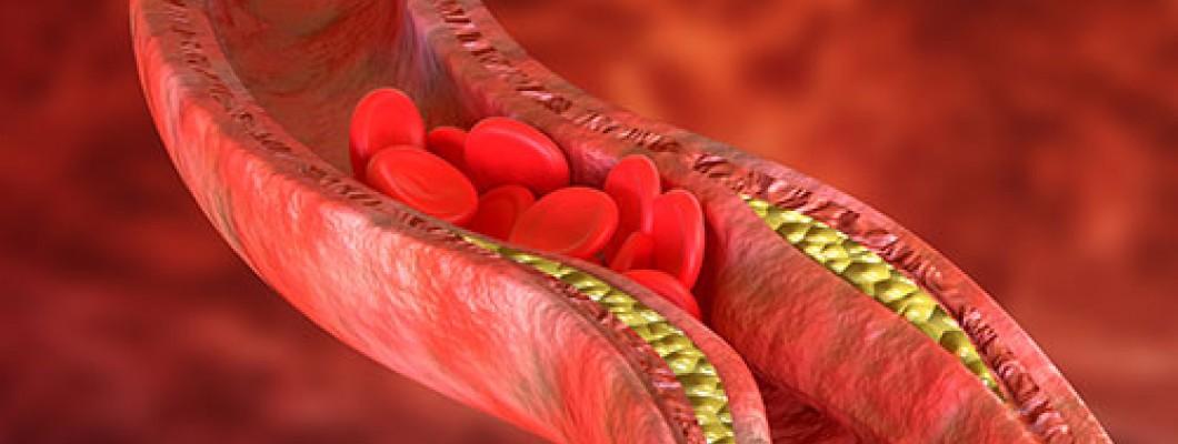 Remedii în lupta cu colesterolul